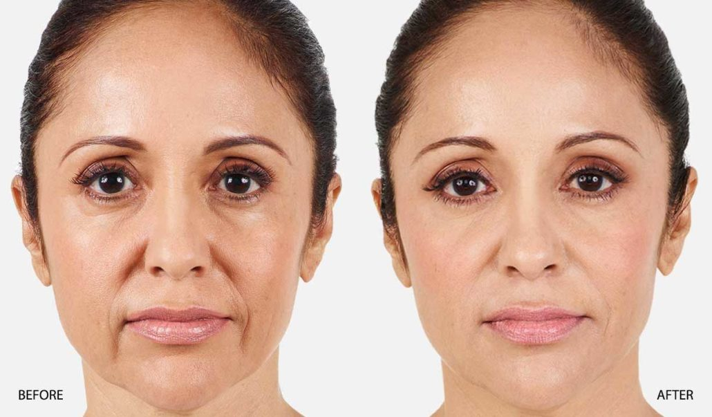 laser treatment for wrinkles around mouth
