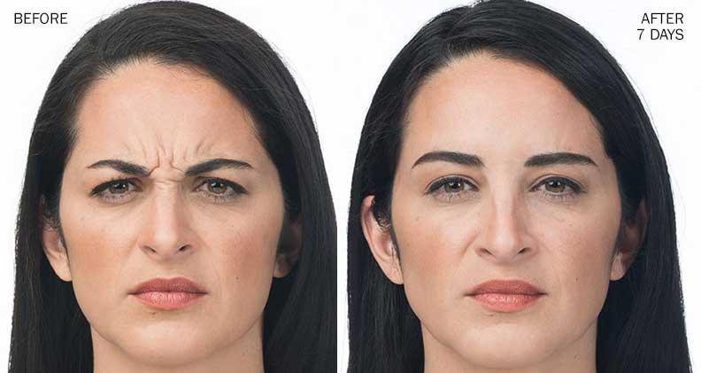 Botox Maryland