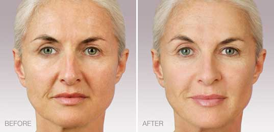 Juvederm Maryland