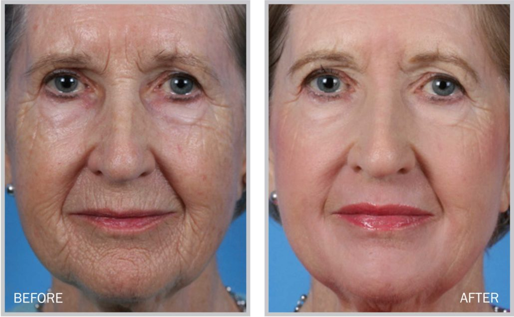 Laser Skin Resurfacing Maryland