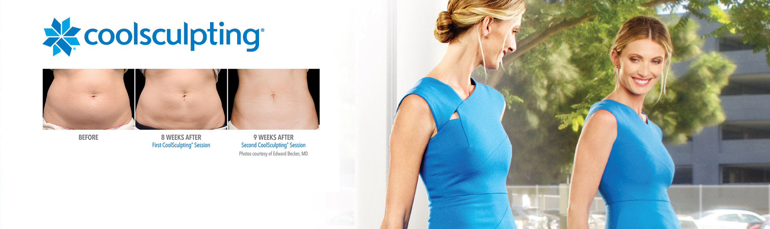 home-page-coolsculpting