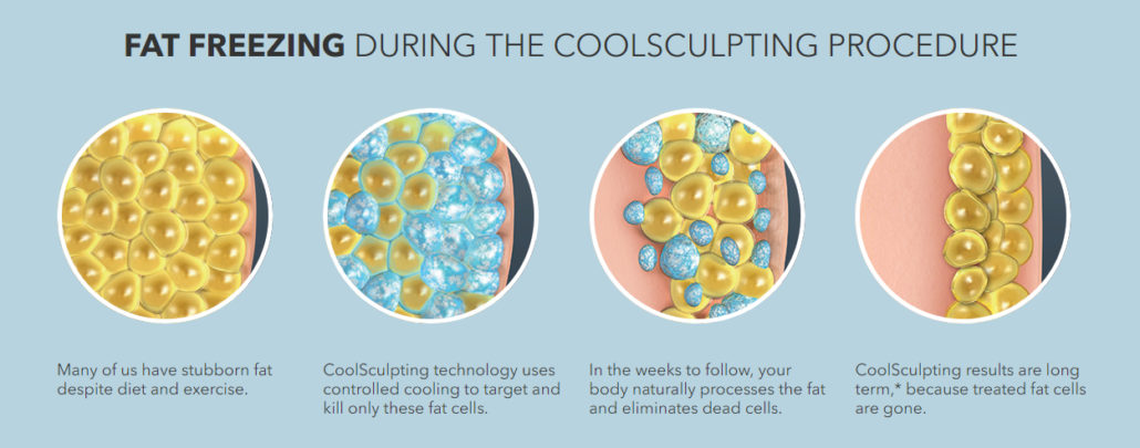 Fat Freezing with CoolSculpting - How Does CoolSculpting Work