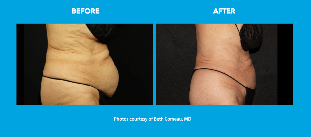 before and after - stomach, flanks