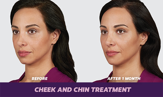 Cheek and Chin Augmentation